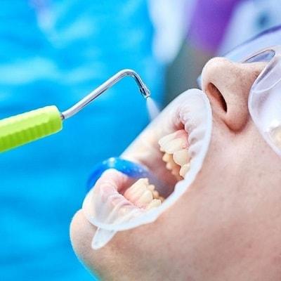 Чистка зубов в Мытищах