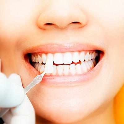 Реставрация зубов в Мытищах